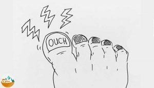 آسیب های ناخن پا در کوهنوردی