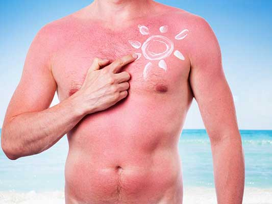 mi-sunburn-sunburnt-skin-summer-irish-pale-istock