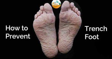 عارضه Trench foot را بهتر بشناسیم؟ عارضه پا سنگری را چگونه درمان کنیم؟
