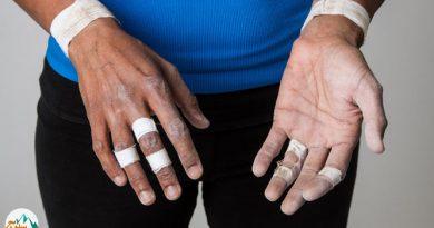 پیشگیری از بروز آسیب به عضلات انگشتان